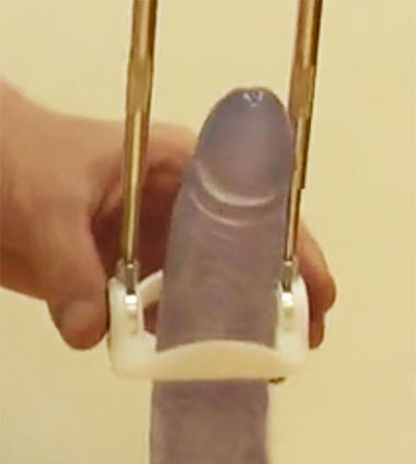 penis traction device used to fix a bent erection