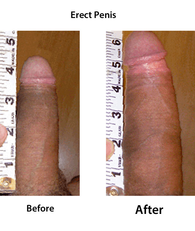 how to increase penis size naturally and safely