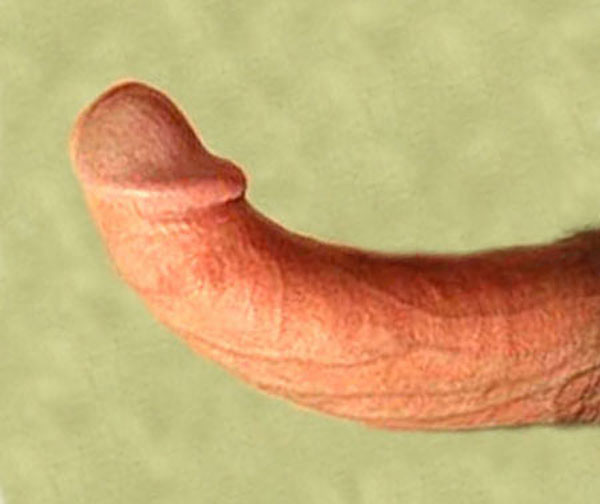severe congenital curved penis