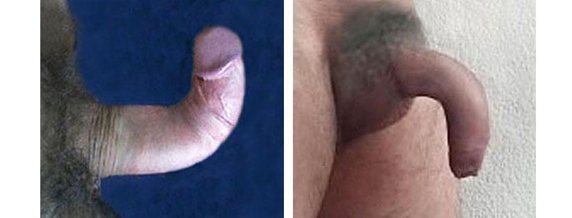 bent penis disease