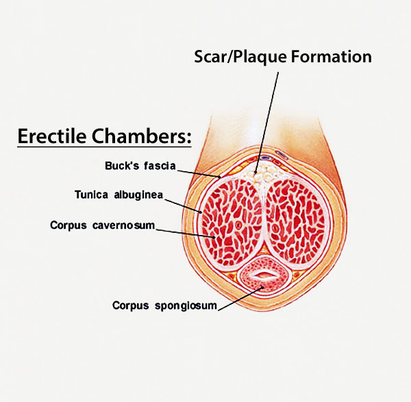 penis curvature from the erectile chambers and tunica albuginea