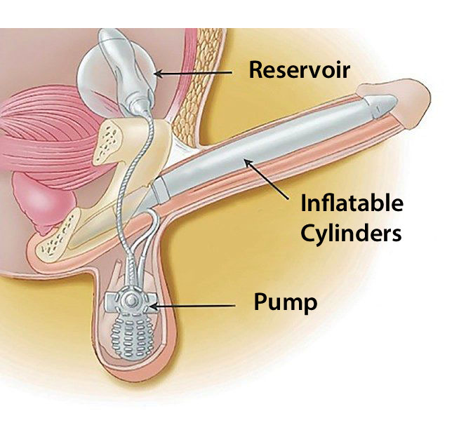 how a penile implant works