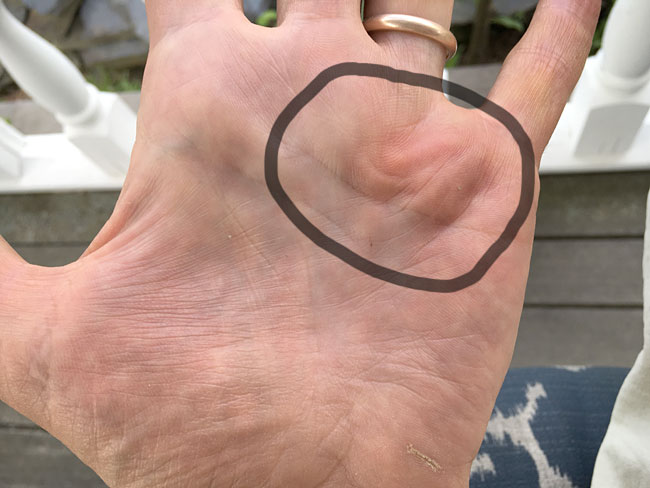 dupuytrens contracture and a bent penis #4
