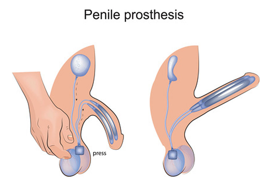 penile prosthesis for erectile dysfunction cure