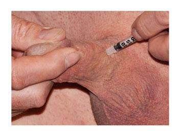 erectile dysfunction treatment, penis injections