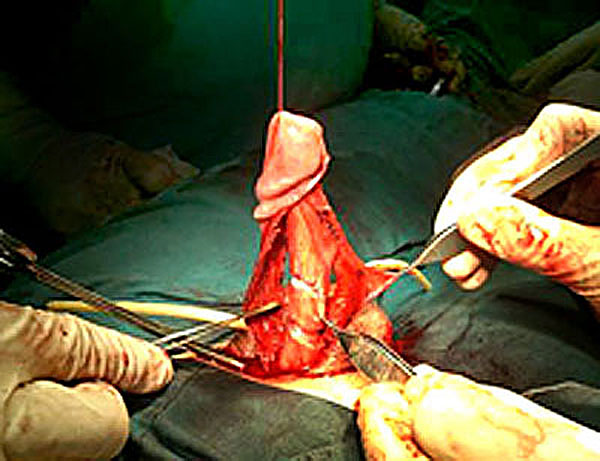degloving for fractured broken penis surgery