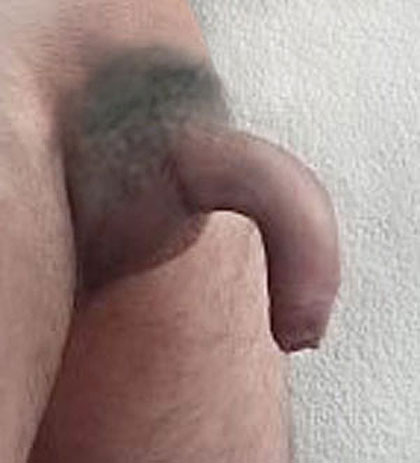 straighten a curved down penis