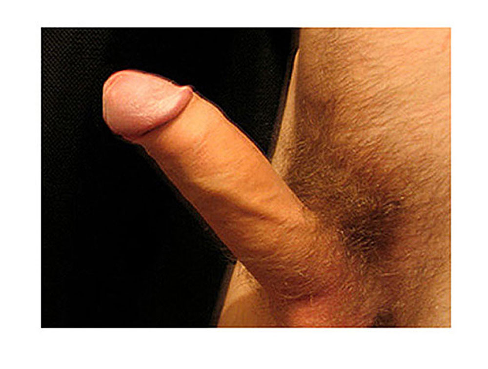 straighten a curved penis naturally without surgery, drugs, or injections