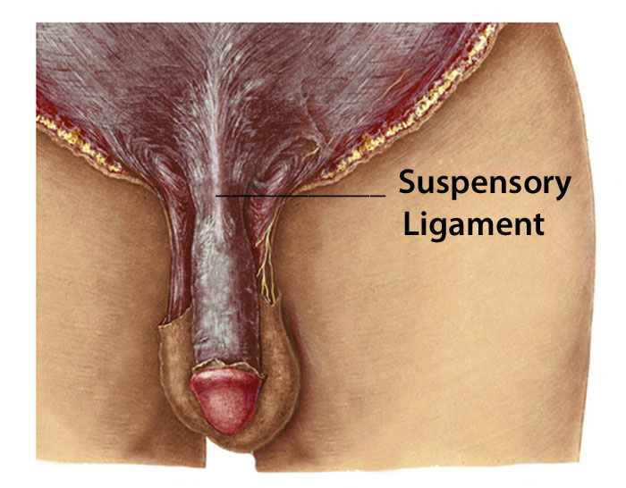 cutting the suspensory ligament attached to the penis