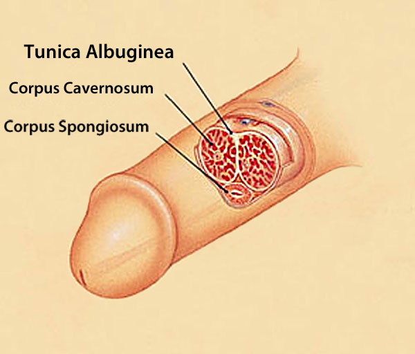 bent penis causes, tunica albuginea