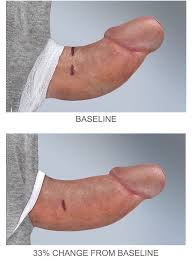 curved penis straightening with Xiaflex