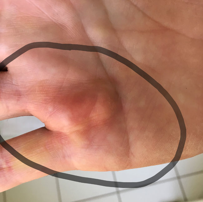 dupuytrens contracture and a bent penis #2