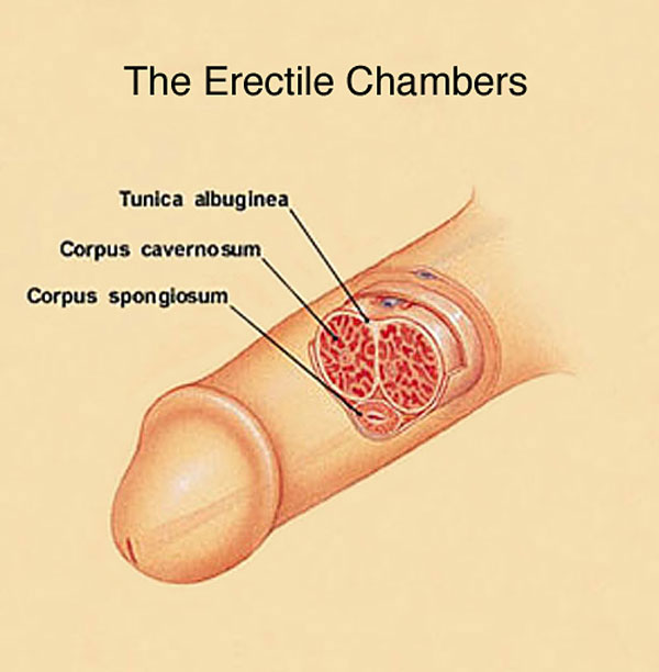the erectile chambers and a bent penis