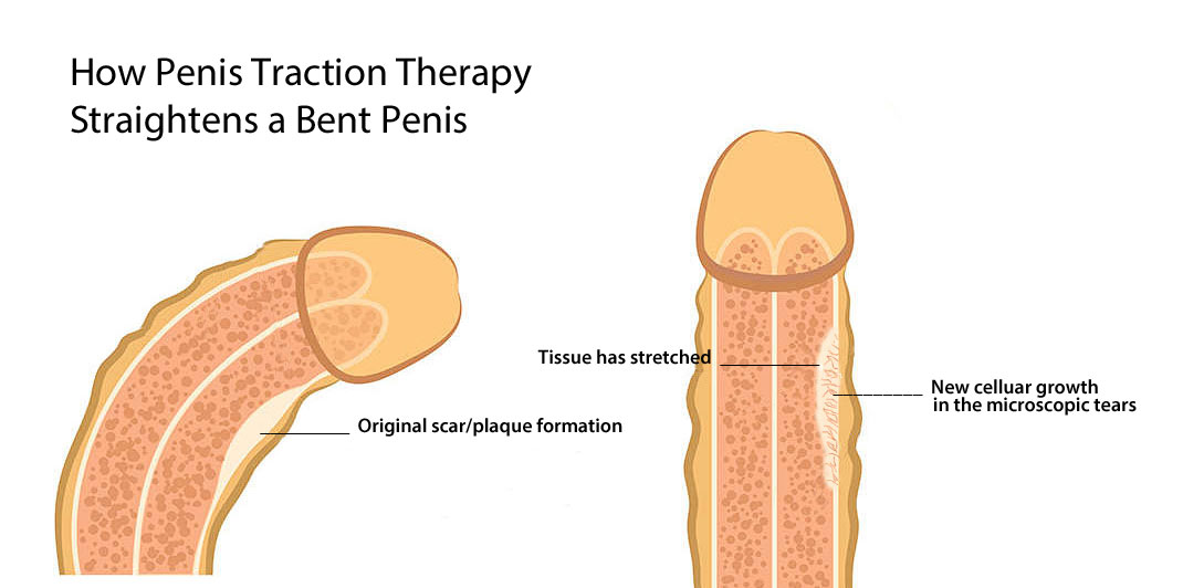penis traction therapy as erectile dysfunction treatment for a bent penis, peyronies disease