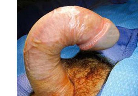 healthy penis with peyronies disease